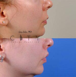 lip lift 47 right profile