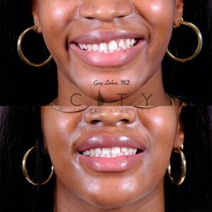 Lip Reduction 4 frontal smile