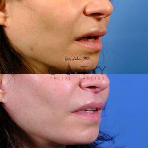 Lip lift 49 Right oblique