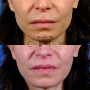 Lip lift 49 frontal mouth closed