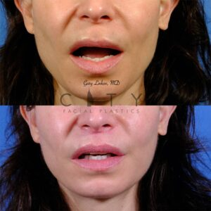 Lip lift 49 frontal mouth open