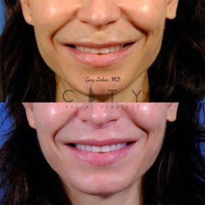 Lip lift 49 frontal smile