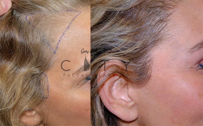 hair transplant 18 right profile