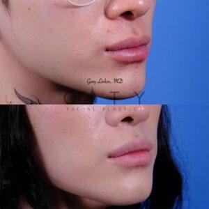 Lip lift 48 right oblique
