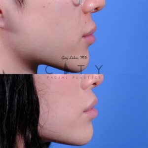 Lip lift 48 right profile
