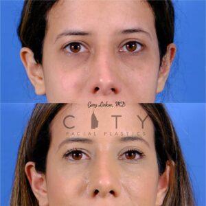 nasal surgery 11 frontal