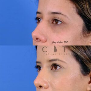 nasal surgery 11 left oblique