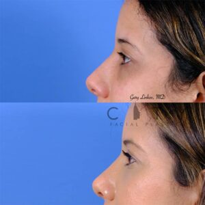 nasal surgery 11 left profile