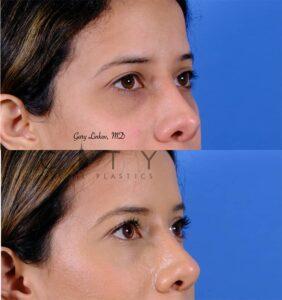 nasal surgery 11 right oblique