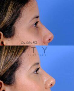 nasal surgery 11 right profile