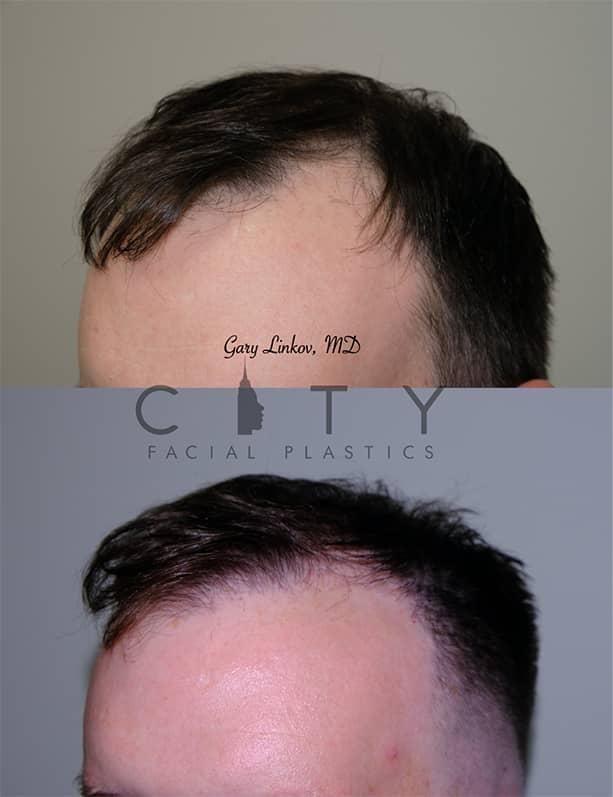 Hair transplant_11_L oblique