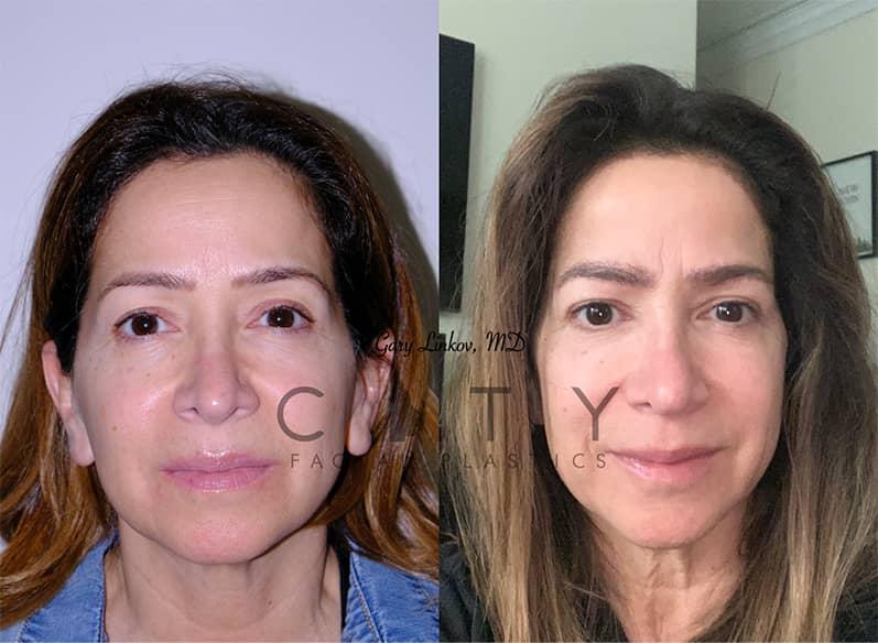 Eyebrow Transplant   NYC Eyebrow Restoration, Eyebrow Transplant
