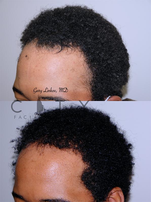 Hair transplant_20_L oblique
