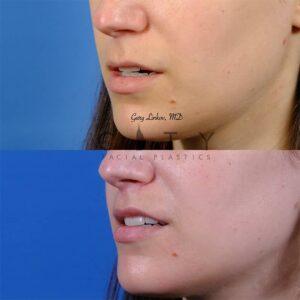Lip lift 50 L oblique mouth open