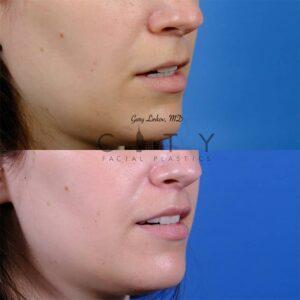 Lip lift 50 R oblique mouth open