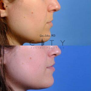 Lip lift 50 R profile