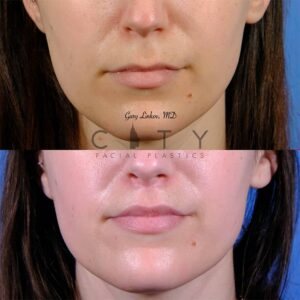 Lip lift 50 frontal mouth closed