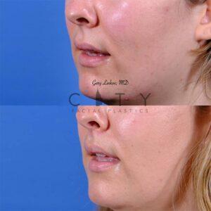 Lip lift 51 L oblique mouth open