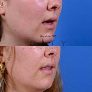 Lip lift 51 R oblique mouth open