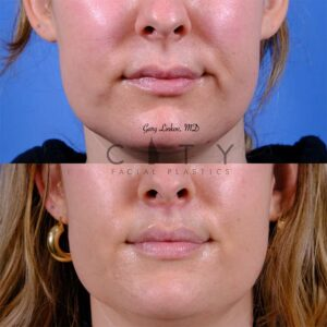 Lip lift 51 frontal mouth closed