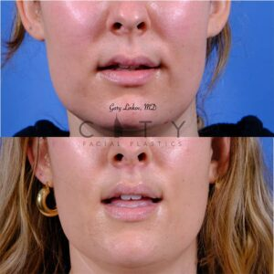 Lip lift 51 frontal mouth open