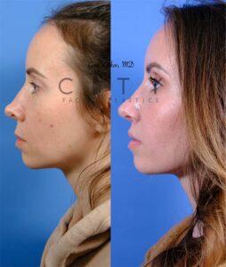 Lip lift 52 L profile