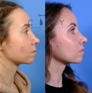 Lip lift 52 R profile