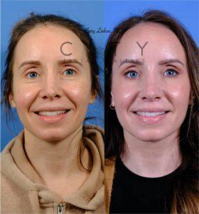 Lip lift 52 frontal smile