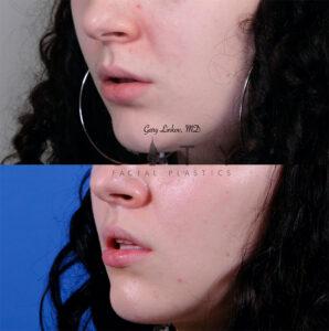 Lip lift 54 L oblique