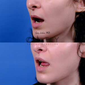 Lip lift 55 L oblique