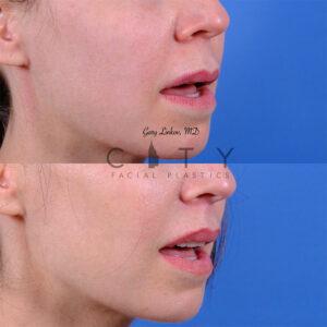 Lip lift 56 R oblique