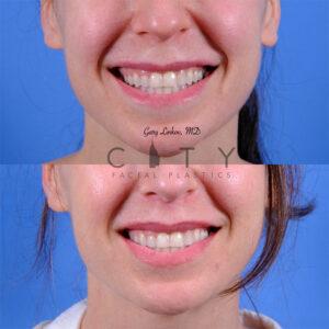 Lip lift 56 frontal smile