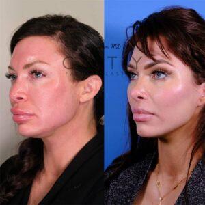 Nasal Surgery 13 L oblique