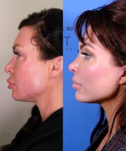 Nasal Surgery 13 L profile