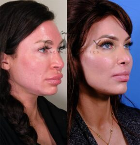 Nasal Surgery 13 R oblique