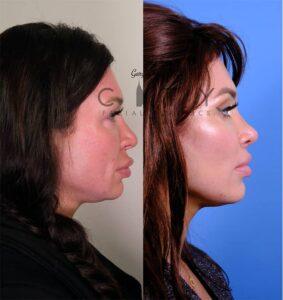 Nasal Surgery 13 R profile