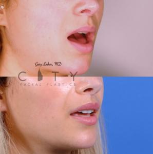 Lip lift 62 R oblique