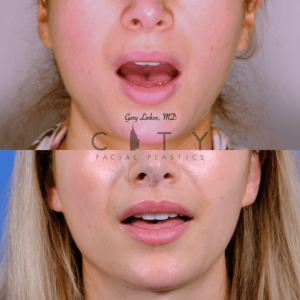 Lip lift 62 frontal mouth open