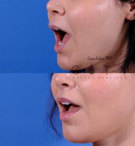 Lip lift 63 L oblique open
