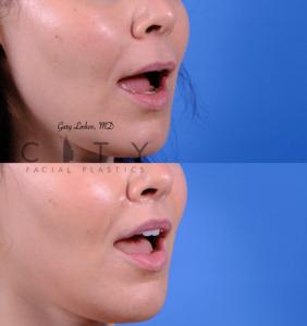Lip lift 63 R oblique open