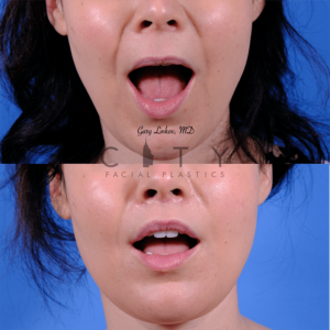 Lip lift 63 frontal mouth open