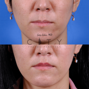 Lip lift 64 frontal mouth closed