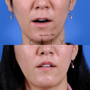 Lip lift 64 frontal mouth open