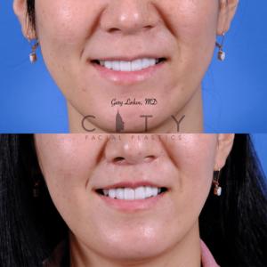 Lip lift 64 frontal smile