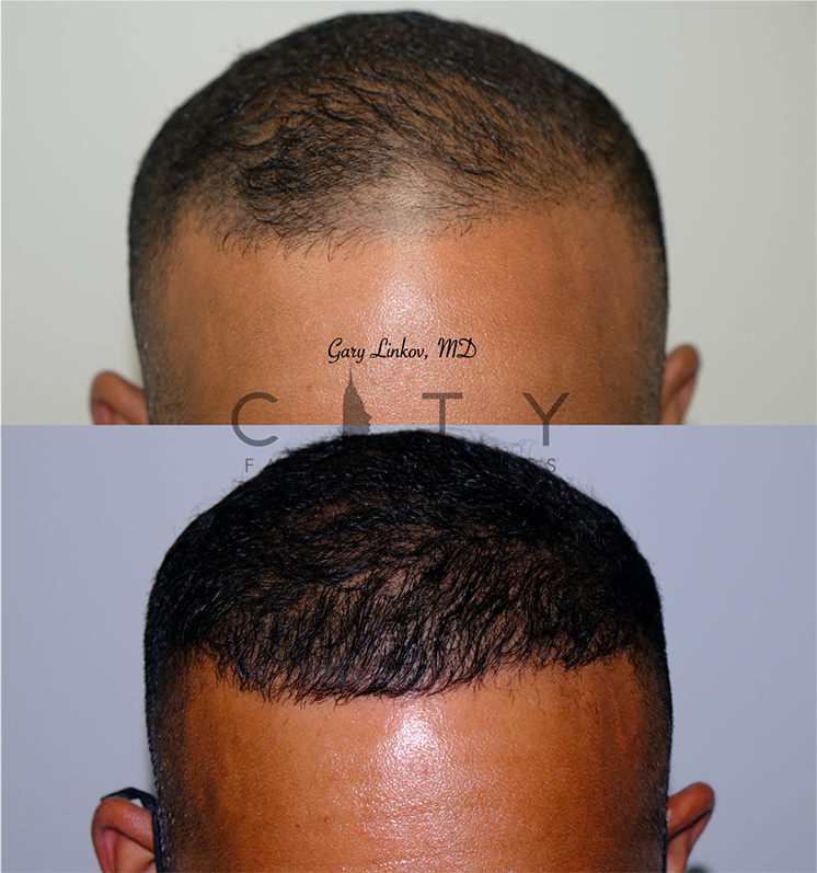Hair transplant_8_frontal