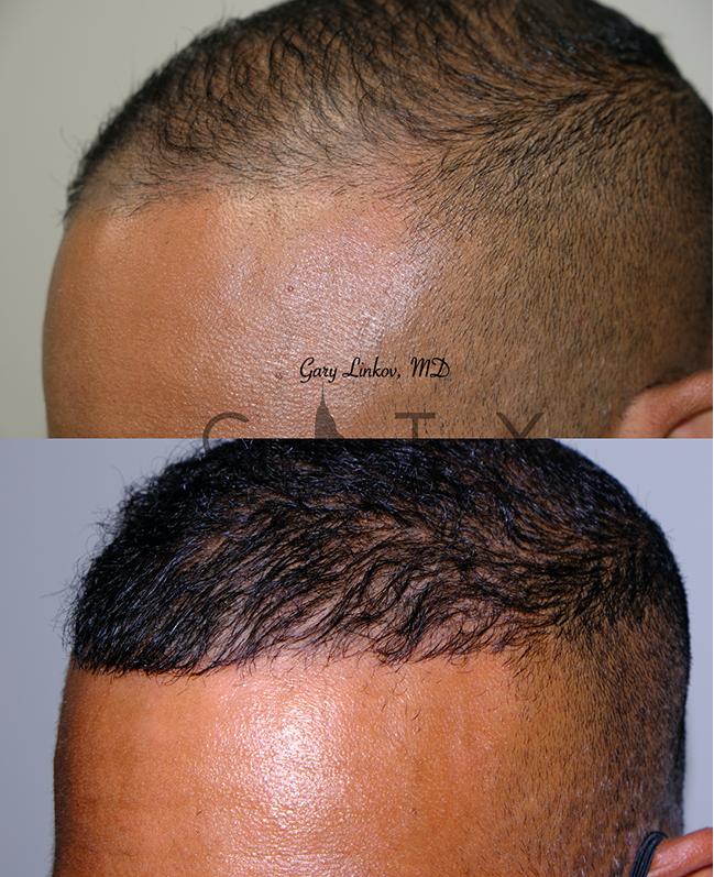 Hair transplant_8_left