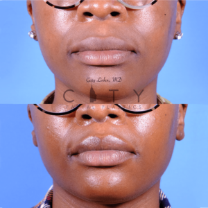 Lip lift 65 frontal mouth closed