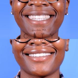 Lip lift 65 frontal smile