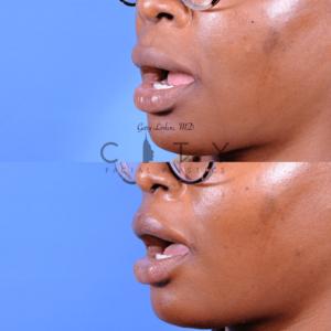 Lip lift 65 oblique L open
