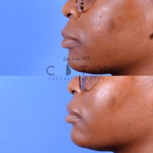Lip lift 65 oblique L profile